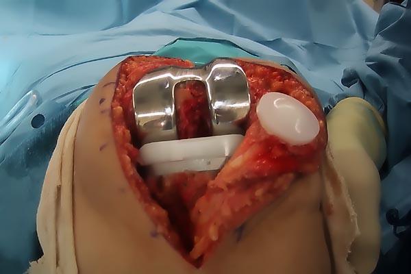 операция тазобедренного сустава видео скачать